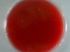 blood-agar-4