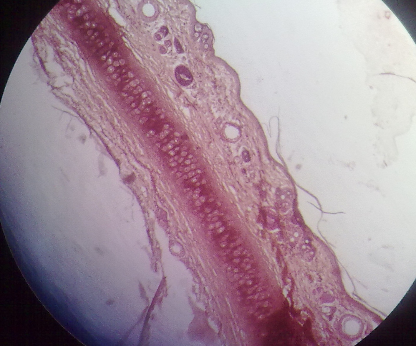 Elastic Cartilage