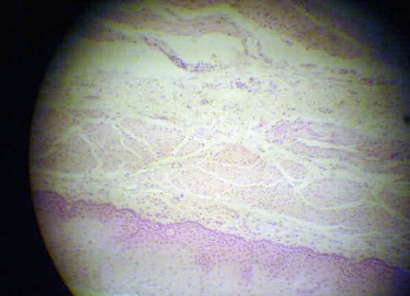 Mucosal Neuroma Histology Aorta Histology   howM...