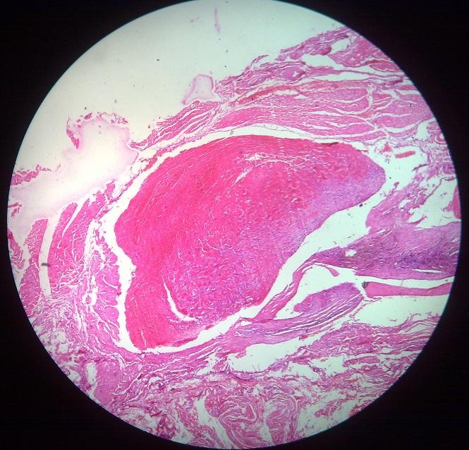 thrombosis-1