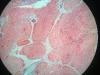 thymus-4