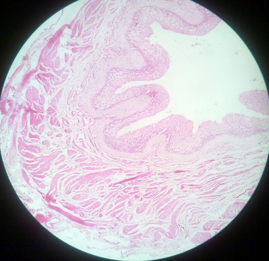 Urinary Bladder Urinary Bladder Histology