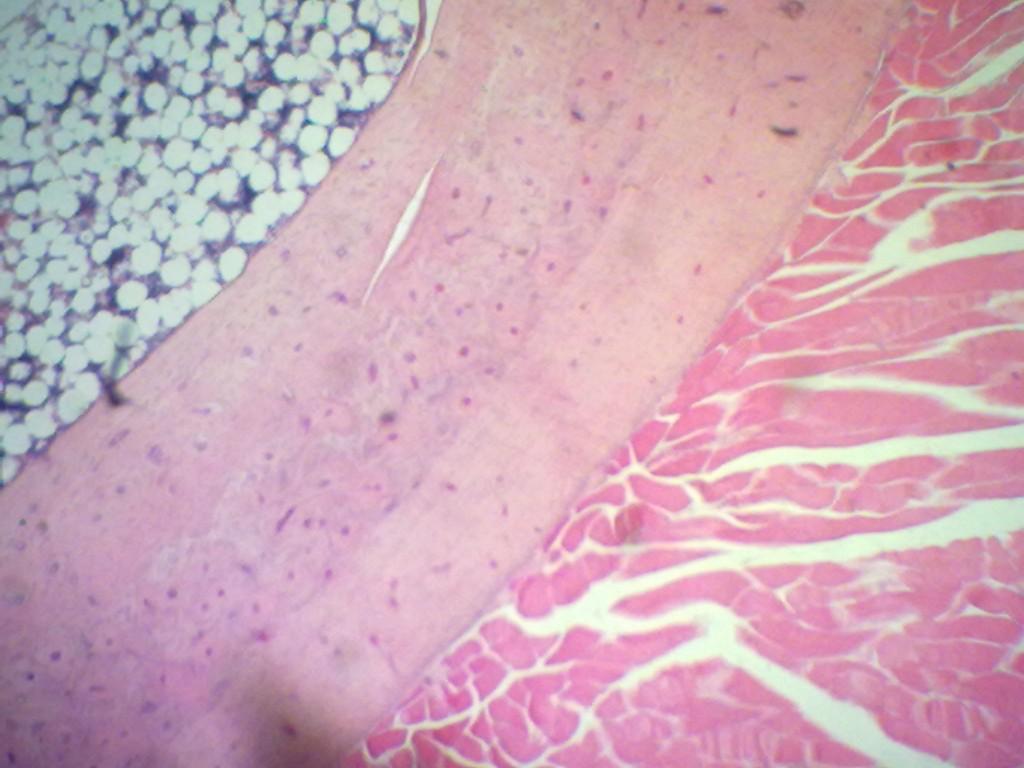 Mucosal Neuroma Histology Neuroma Histology Rela...
