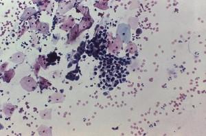 Adenocarcinoma of Vagina