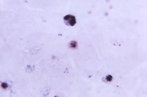 Plasmodium Vivax Gametocyte