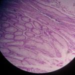 adenocarcinoma colon